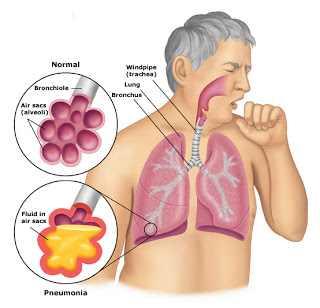 БОЛЕЗНИ ОРГАНОВ ДЫХАНИЯ Неинфекционные пневмонии