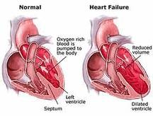 БОЛЕЗНИ КРОВООБРАЩЕНИЯ Хроническая сердечная недостаточность