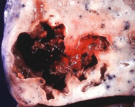 БОЛЕЗНИ ОРГАНОВ ДЫХАНИЯ Острые деструктивные процессы в легких