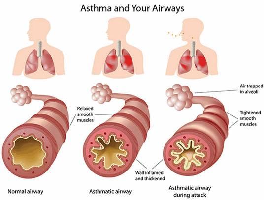 БОЛЕЗНИ ОРГАНОВ ДЫХАНИЯ Бронхиальная астма