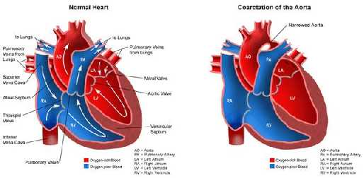 БОЛЕЗНИ КРОВООБРАЩЕНИЯ Коарктация аорты