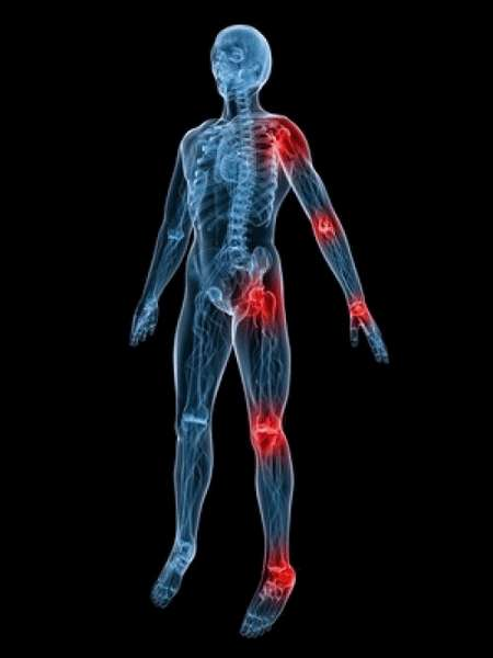 БОЛЕЗНИ СУСТАВОВ Сифилитический артрит