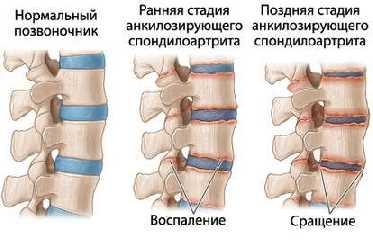 БОЛЕЗНИ СУСТАВОВ Анкилозирующий спондилоартрит, болезнь Бехтерева