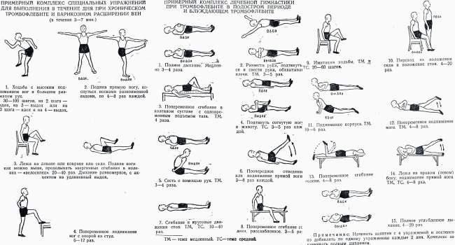 Аюрведа при варикозе комплекс йоги