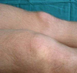 Восстановление после травмы колена