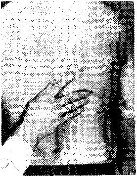 Техникасоединительнотканногомассажа