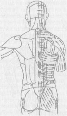 Вибромассаж игольчатыми вибратодами